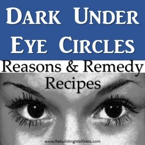 Dark Under Eye