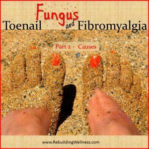Toenail Fungus Fibromyalgia 2